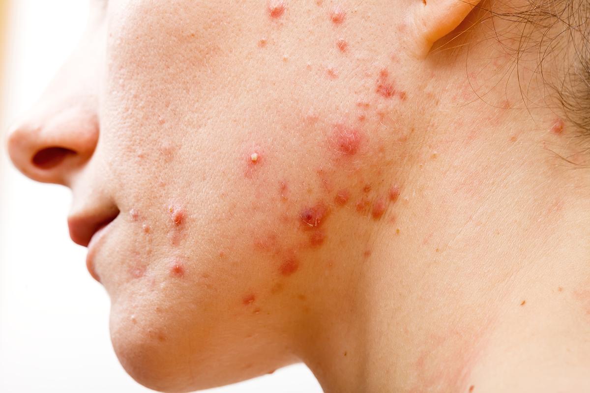 Omega 3, una potente herramienta para combatir el acné