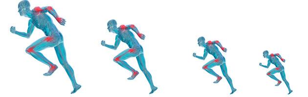 artritis reumatoide ejercicios recomendados